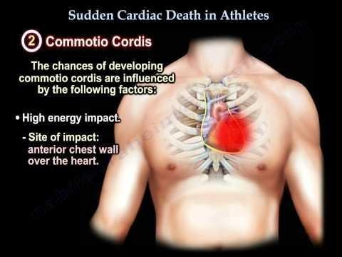 Sudden Cardiac Death In Association With The Ketogenic Diet.