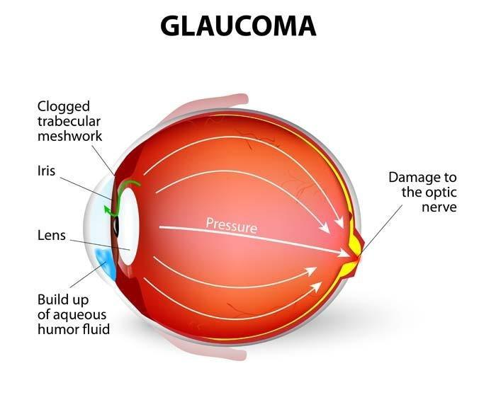 Does Diabetes Cause Glaucoma