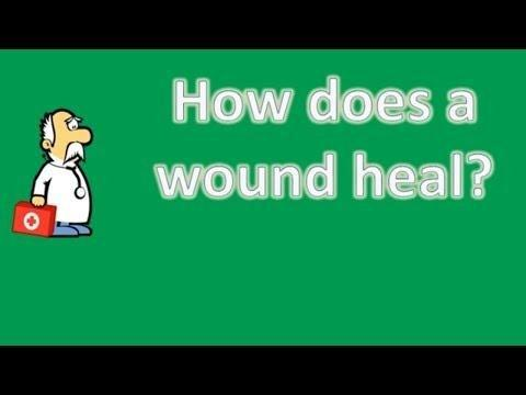 Diabetes And Its Effects On Wound Healing