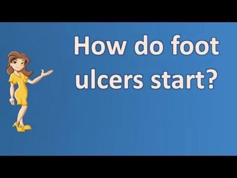 What Causes Diabetic Ulcers In The Foot?