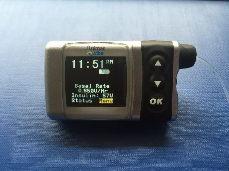 Insulin Pump Airport Security