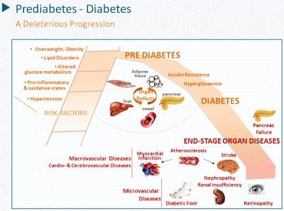 """""""normal"""" Blood Sugar Levels May Still Mean You Have Prediabetes"""