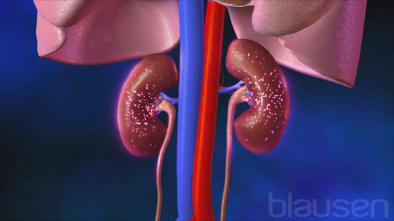 Ph Control: Respiratory Acidosis