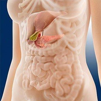 Fatty Pancreas Diet