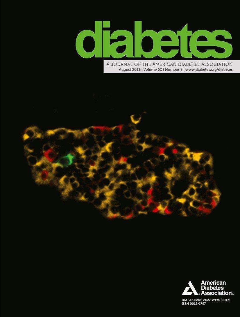 Diagnostic Assessment Of Diabetic Gastroparesis