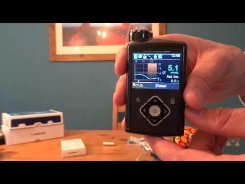Medtronic 670g App