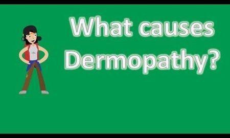 Diabetic Dermopathy Pictures