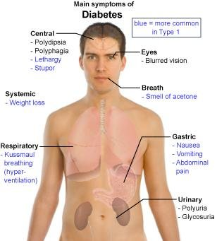 What Are The Early Symptoms Of Diabetes?