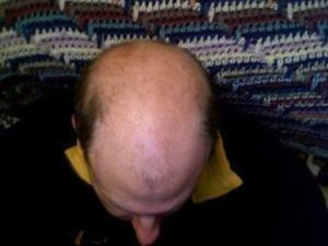 Does Taking Insulin Cause Hair Loss?