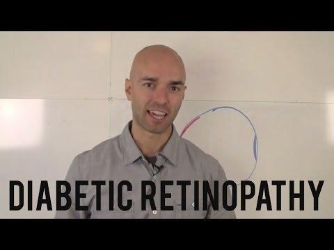 Diabetes With Mild Nonproliferative Diabetic Retinopathy Icd 10 Code