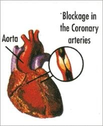 Cardio Vascular Cartography