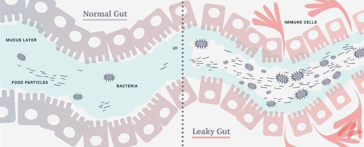 The Trouble With Leaky Gut And What To Do Aboutit?