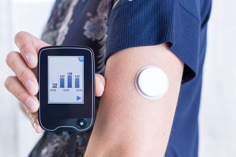 Continuous Glucose Monitoring Devices