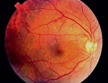 Why Is There Retinopathy In Diabetic?