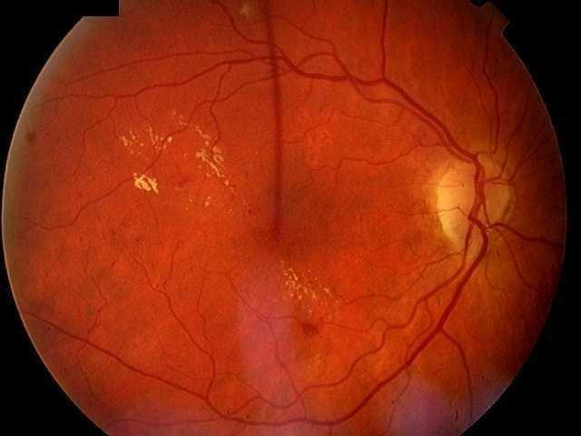 Diabetic Maculopathy Symptoms