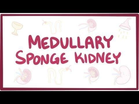 Medullary Sponge Kidney