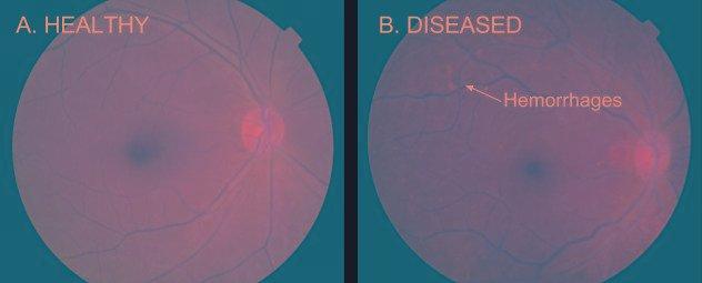 Deep Learning For Detection Of Diabetic Eye Disease
