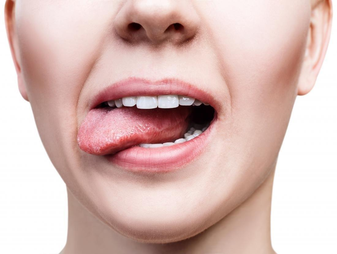 What Causes A Sweet Taste In The Mouth?