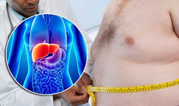 Fatty Liver Disease: Complex Condition Can Also Damage Other Organs