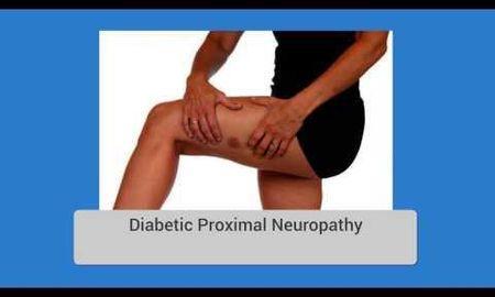 Types Of Diabetic Neuropathy