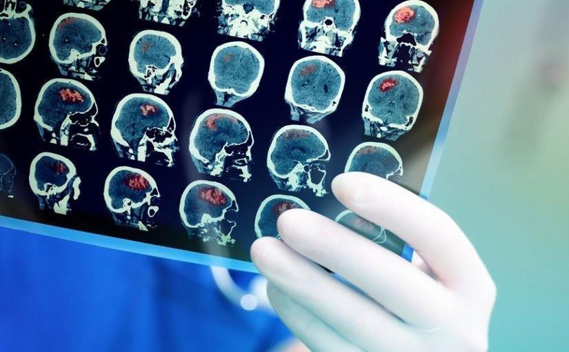 Metformin Deemed Safe For Most Medical Imaging