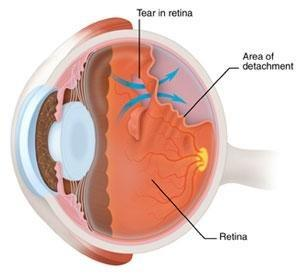Can Diabetes Cause Retinal Tears?