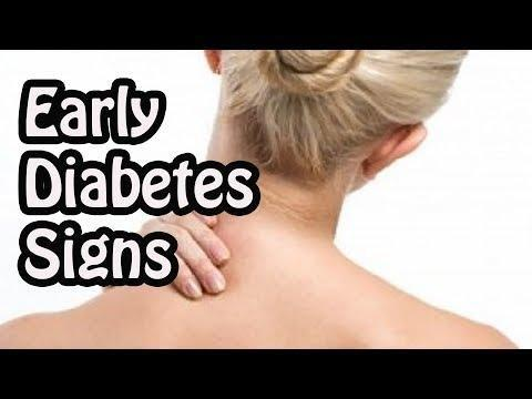 Diabetes Symptoms: Early Signs, Advanced Symptoms, And More