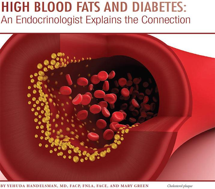 High Blood Fats And Diabetes: