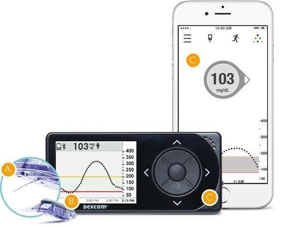 Dexcom Continuous Glucose Monitor Reviews