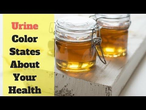 Colour Of Diabetic Urine