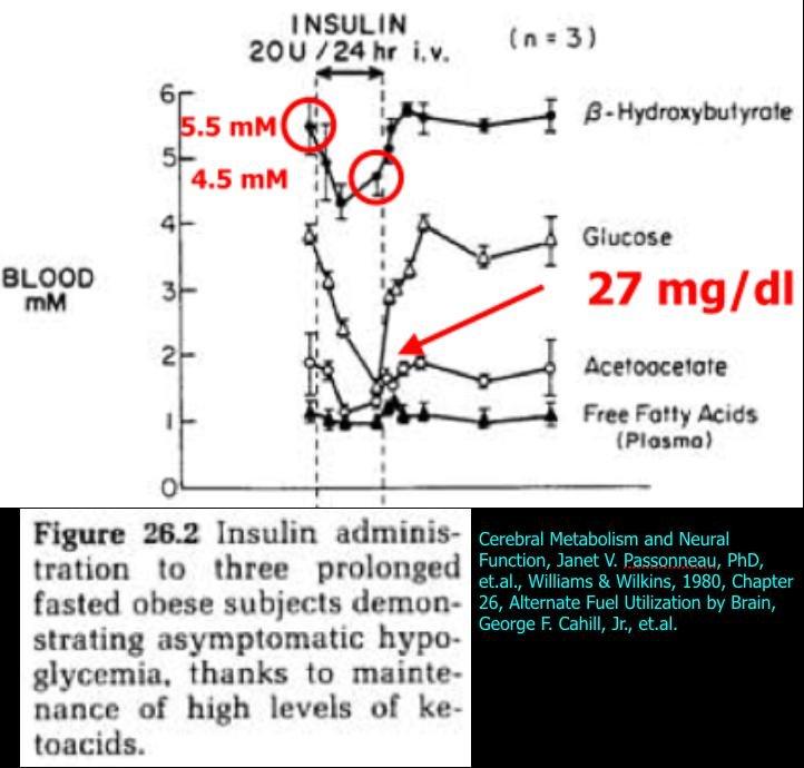 #12: Hypoglycemia – Can Ketones Help Fuel The Brain?