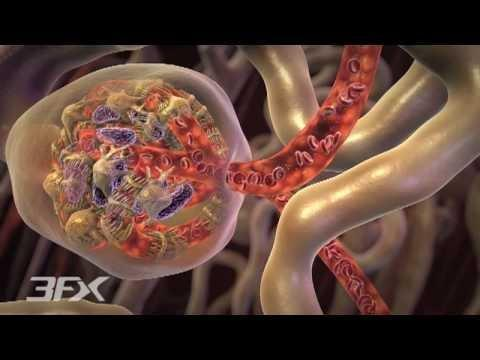 Pathophysiology Of Diabetic Foot Ulcer Pdf