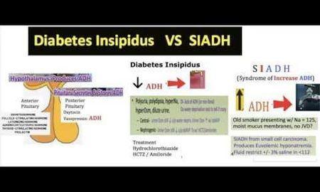 Diabetes Insipidus Vs Diabetes Mellitus