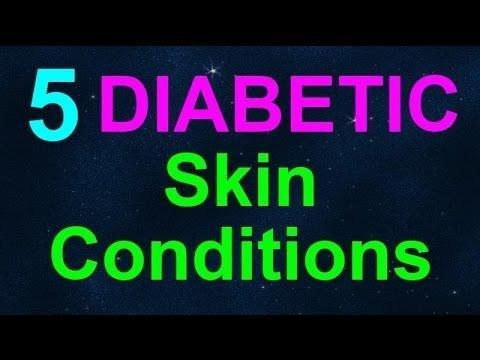 Diabetic Skin Care Tips