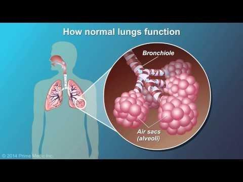 Can Emphysema Cause Respiratory Acidosis?