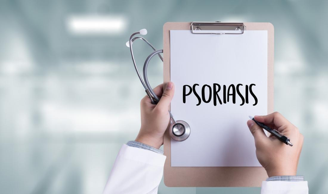 Psoriasis severity may influence type 2 diabetes risk