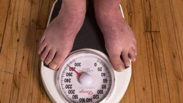 Case Study On Obesity And Diabetes