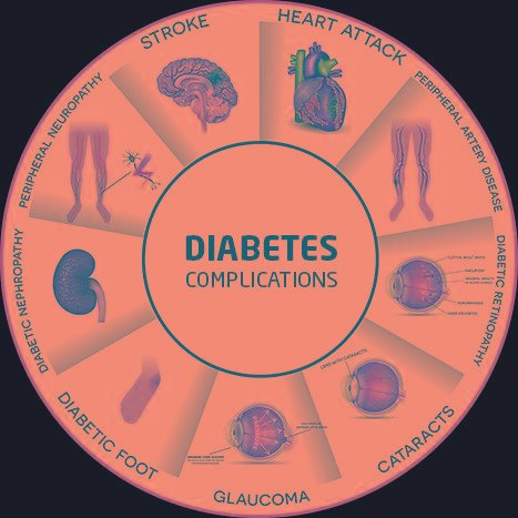 Diabetes Surgery In India, Metabolic Surgery For Diabetes