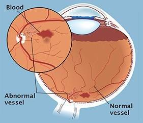 Can Diabetes Cause Retinal Detachment