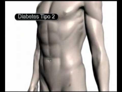 Cules Son Las Diferencias Bsicas Entre La Diabetes Tipo 1 Y La Diabetes Tipo 2?