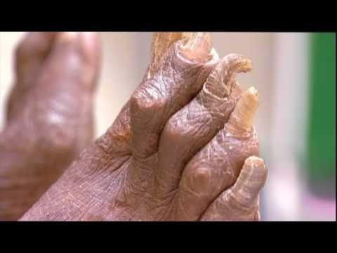 Why Do People With Diabetes Need To Take Care Of Their Feet?