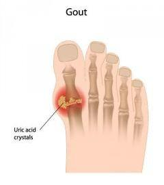 Is There A Link Between Diabetes And Gout?