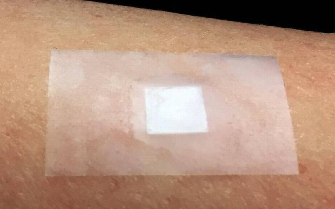 Smart Insulin Patches Developed At Unc Ncsu One Step Closer To Market