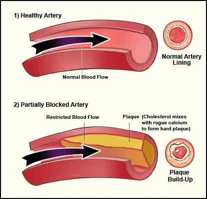 Does Diabetes Cause High Blood Pressure