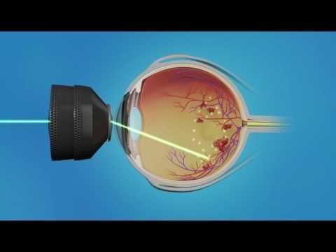 Diabetic Macular Edema Treatment
