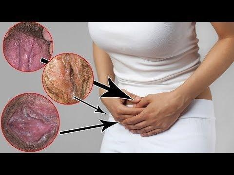[is Diabetes Mellitus A Risk Factor In Genital Yeast Infections?].