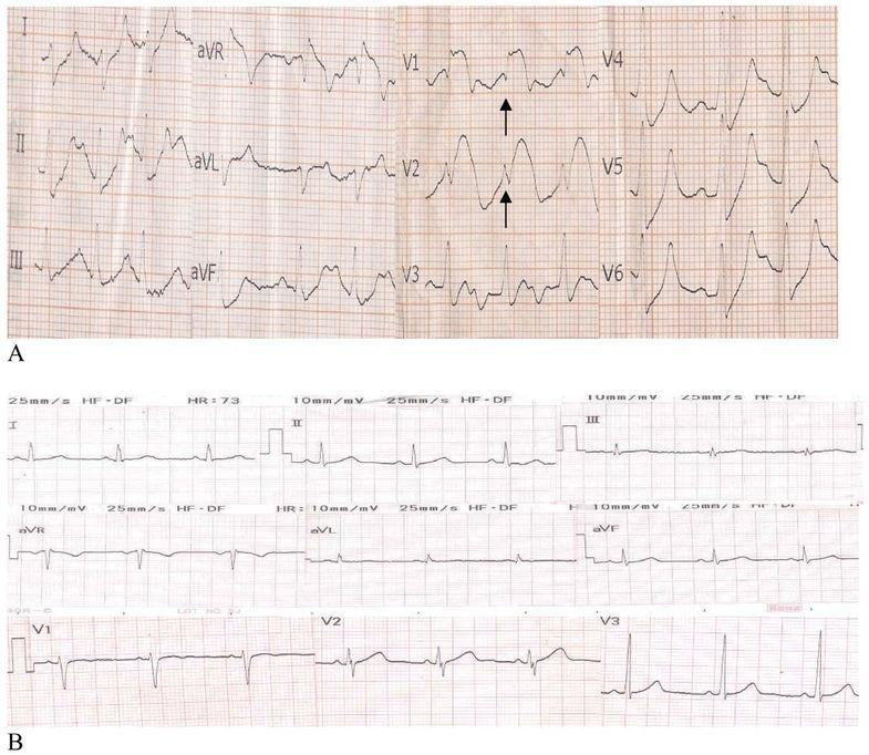 Pseudoinfarction Pattern In A Patient With Hyperkalemia, Diabetic Ketoacidosis And Normal Coronary Vessels: A Case Report