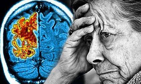 Why Doctors Stop Prescribing Metformin