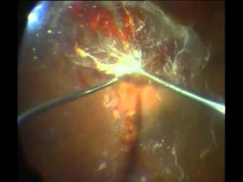 Diabetic Retinopathy Retinal Detachment