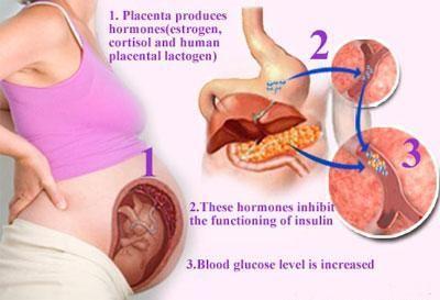 Gestational Diabetes Placenta Breaking Down